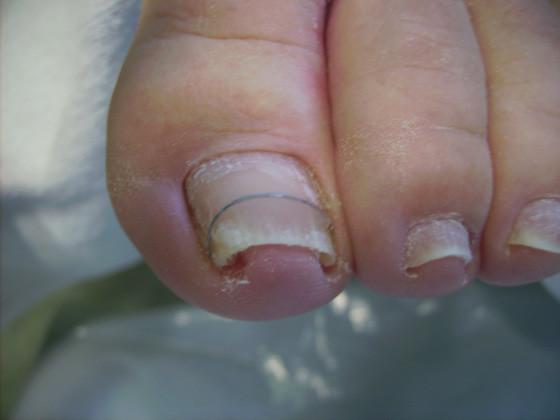 afbeelding ingegroeide nagel behandelen
