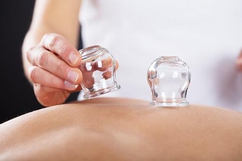 cuppingmassage lichaam salon miranda spijkenisse